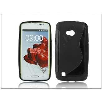 LG L50 fekete szilikon hátlap