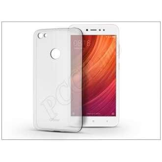 Xiaomi Redmi Note 5A Prime átlátszó szilikon hátlap