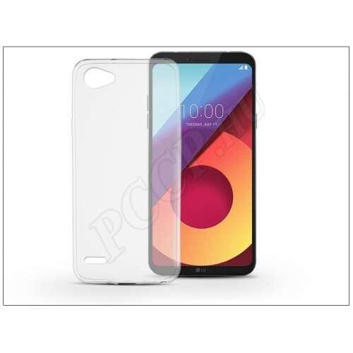 LG Q6 szilikon átlátszó hátlap